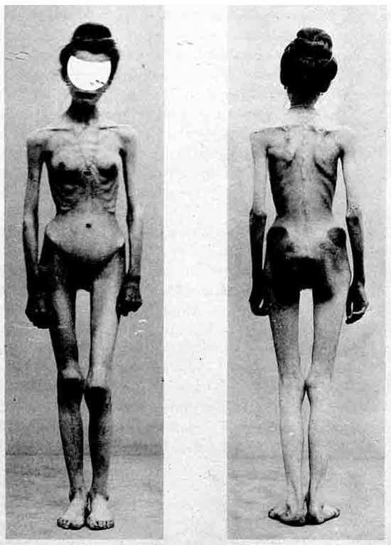 Anorexia Nervosa Magersucht Essstörung