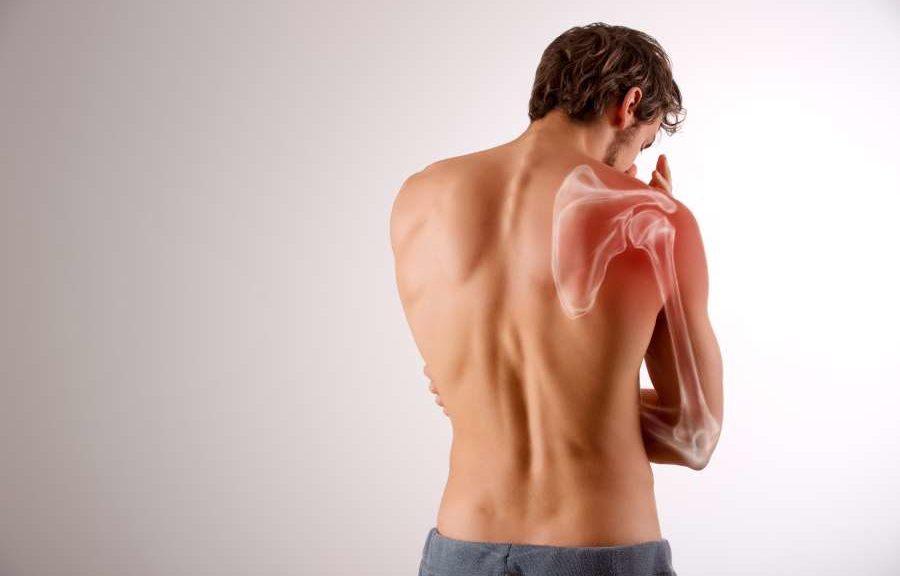 Impingementsyndrom Schulterschmerz Klimmzug